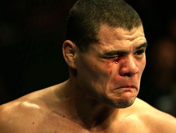 Wagner Caldeirão na luta do UFC (Foto: Getty Images)