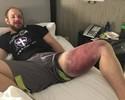 Vítima dos chutes de Thiago Silva, lutador posta foto do estrago na perna