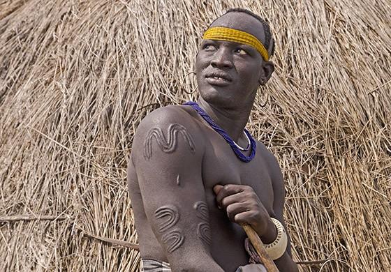 Os homens preferem realizar suas escarificações nos ombros e as marcas simbolizam força e coragem (Foto: © Haroldo Castro/ÉPOCA)