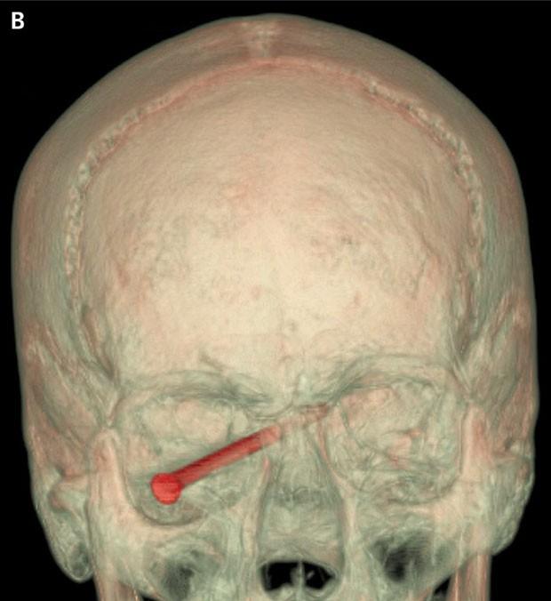 Por pouco o paciente não perdeu sua visão, segundo especialistas que o trataram em um hospital de Boston, nos EUA (Foto: New England Journal of Medicine/AP)