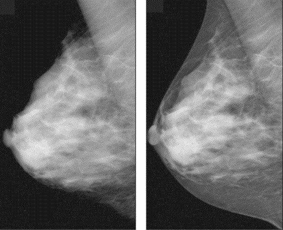 Na mamografia comum (primeira foto) não é possível ver todo o tecido mámário, como na digital (foto2) (Foto: Divulgação/secretaria de Saúde)