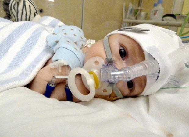 O bebê Thomas (Foto: Caters)
