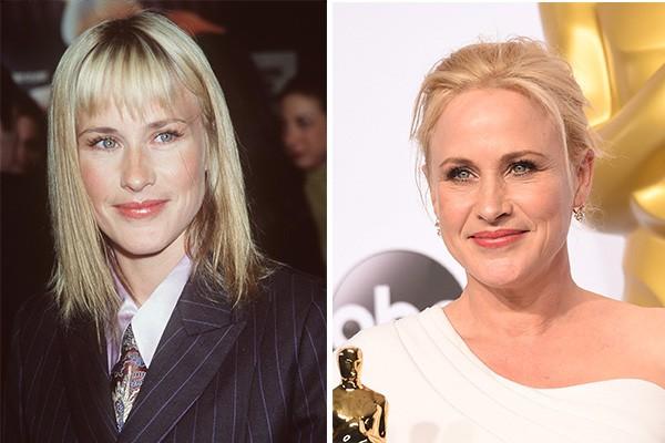 Patrícia Arquette ('Boyhood: Da Infância à Juventude') em 1999 e atualmente, com 46 anos (Foto: Getty Images)