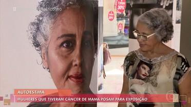 Mulheres que tiveram câncer de mama posam para exposição