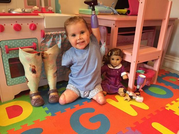 Antes da boneca, Harmonie ficava por nunca ter conhecido ninguém sem os quatro membros (Foto: Reprodução/Facebook)