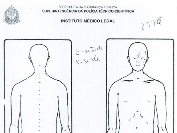 Laudo necroscópico mostra locais onde empresário Ricardo Aquino foi baleado: dois tiros na cabeça, com dois locais de entrada dos projéteis e um de saída (Foto: Reprodução)