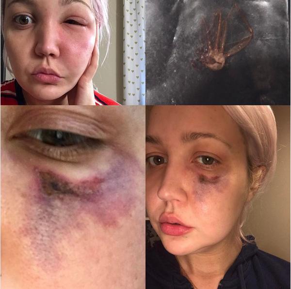 A cantora Meghan Linsey com a ferida decorrente da picada e a aranha morta (Foto: Instagram)
