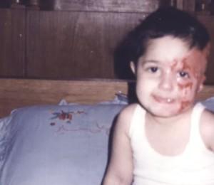 Quando criança, Basma sofreu um acidente enquanto brincava na cozinha de casa. Sem querer, seu irmão derrubou óleo fervente sobre seu rosto (Foto: Arquivo Pessoal)