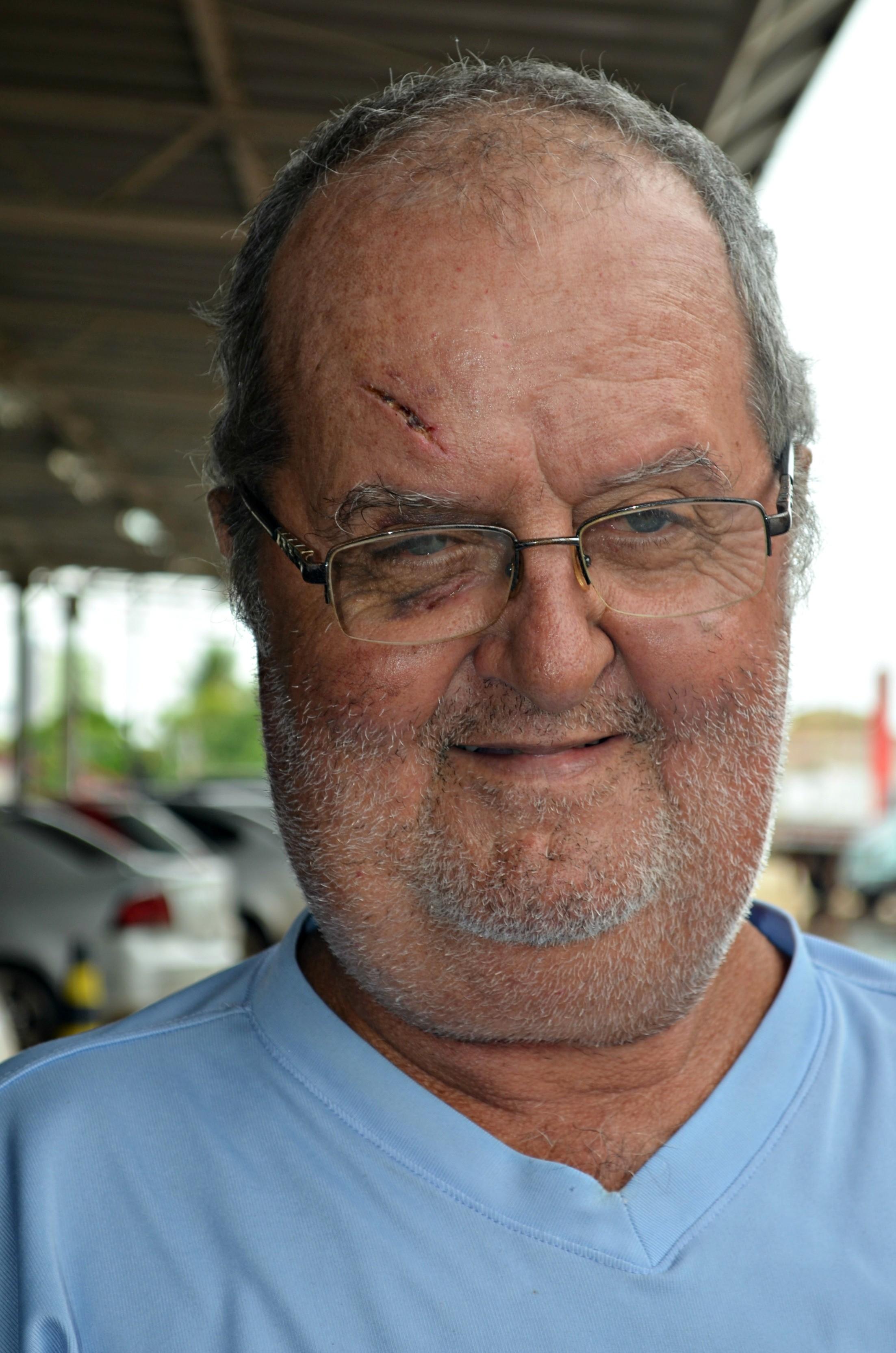Jonas Guilherme, de 63 anos, sobreviveu após por mais de três dias na floresta (Foto: Caio Fulgêncio/G1)
