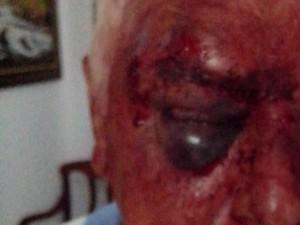 Idoso teve hematomas no rosto (Foto: Polícia Militar/Divulgação)