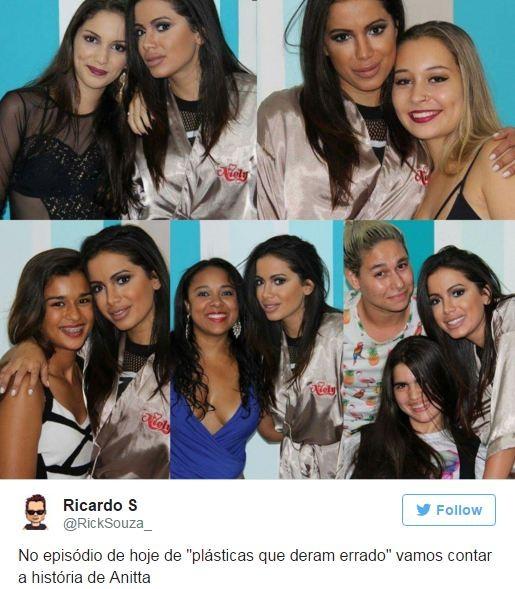 Anitta faz preenchimento labial e resultado vira meme na internet editora globo foto editora globo altavistaventures Image collections