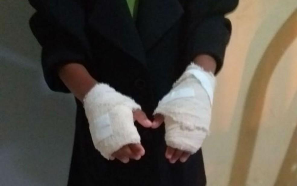 Menina de seis anos tem mãos queimadas pela mãe da madrasta, em Amélia Rodrigues (Foto: Genebaldo Correia/Berimbau Notícias)