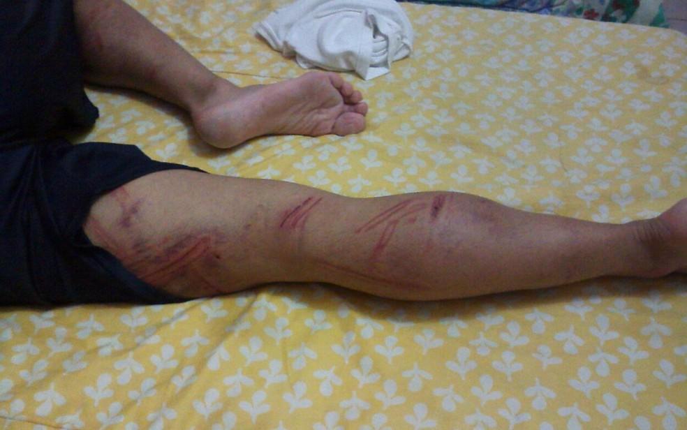Perna de soldado ficou machucada após agressão (Foto: Arquivo Pessoal)