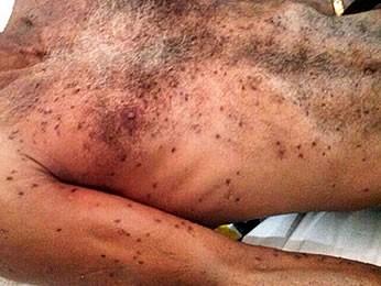 Homem morre após ser picado por abelhas (Foto: Marcelo Moraes/Força Tática PM - Pontes e Lacerda)