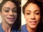Ex-empresária de Anitta posta foto com rosto deformado e alfineta