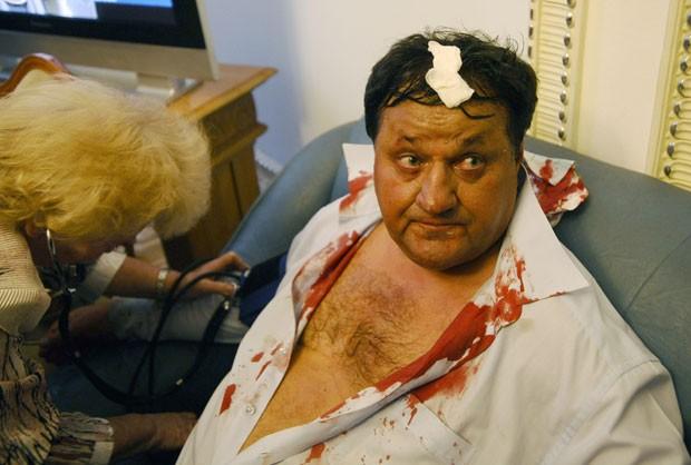 O opositor Mykola Petruk acabou recebendo atendimento na enfermaria após a confusão (Foto: Maks Levin/AP)
