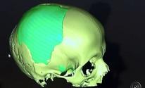 Estudo é feito com 'Ossos de plástico' (Reprodução/TV TEM)