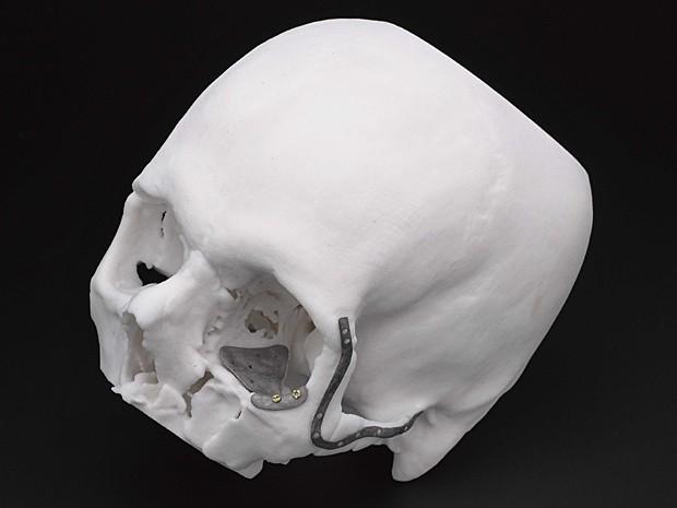 Exposição de implante no Museu de Ciências de Londres (Foto: Science Museum & Renishaw Plc)