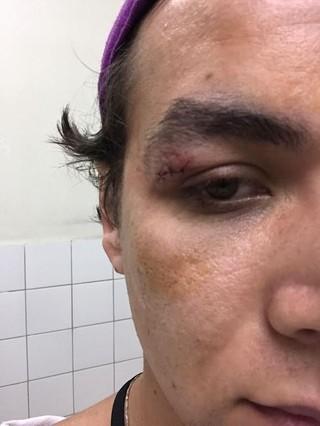 Fotógrafo André Ligeiro acusa ator Caio Castro de agressão em festa na Bahia (Foto: Ali Karakas)