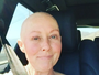 Ex-'Barrados no Baile' fala sobre sua luta contra o câncer durante entrevista