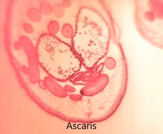 Foto de parasita tirada com a lente de PDMS (Foto: Reprodução/Youtube)