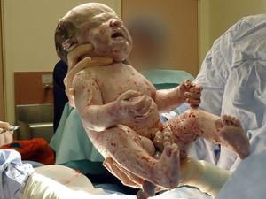 Bebê nascido em cesárea; a cesariana é um recurso importante para salvar vidas, mas não deve ser feita desnecessariamente (Foto: BBC)