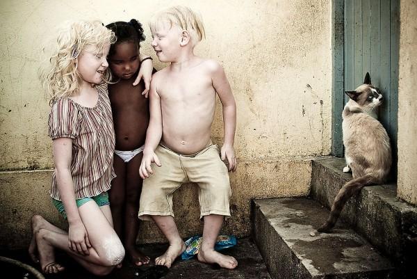 Em 2009, Severo recebeu menção honrosa no prêmio Wladimir Herzog pelo ensaio À Flor da Pele, que retratava a história de três irmãos albinos nascidos em uma família de negros em Olinda (Foto: Reprodução / Site Oficial de Alexandre Severo)