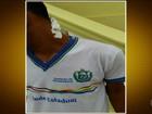 Escolas municipais de Itambé (PE) fecham em protesto contra violência