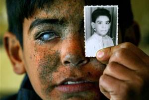 O menino Ayad posa com a foto que o retrata ainda antes do bombardeio (Foto: Mauricio Lima)