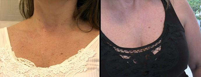 Antes e depois do tratamento para o colo (Foto: TV Globo)