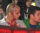 Tumulto entre manifestantes tem 1 ferido  (Flavio Moraes/G1)