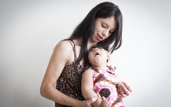 microcefalia (Foto: Leticia Moreira/ Epoca)