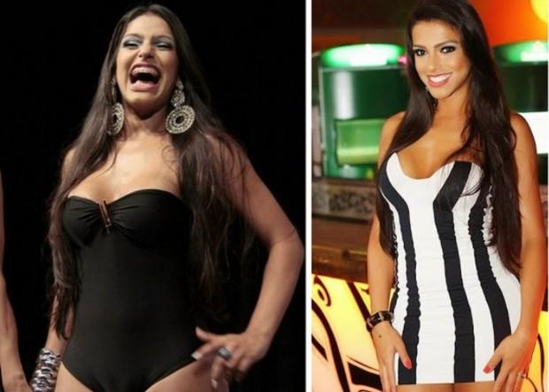 Raika Ferraz antes da bioplastia (esquerda) e depois das mudanças (direita) (Foto: Isac Luz/EGO e Divulgação)
