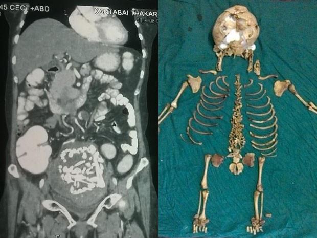 À esquerda, imagem de exame mostra massa encontrada no abdômen de uma mulher na China. Ela estava com um feto morto em seu corpo há 36 anos; à direita, foto mostra montagem do esqueleto do feto encontrado (Foto: Dept of Surgery/N K P Salve Institute of Medical Sciences/AFP)