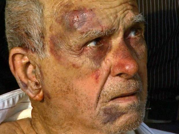 """""""Eu não tinha como reagir"""", disse o aposentado Sebastião Lopes, de 88 anos, assaltado dentro de casa em Ribeirão (Foto: Reprodução EPTV)"""