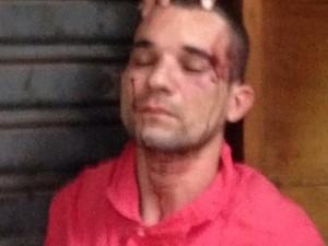 Suspeito foi espancado por populares e ficou com ferimentos na cabeça (Foto: G1)