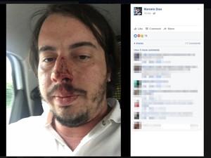 Marcelo conta que teve rosto machucado após levar socos (Foto: Reprodução/ Facebook)