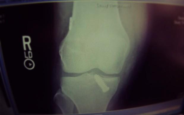 esqui Lindsey Vonn raio-x joelho (Foto: arquivo pessoal)