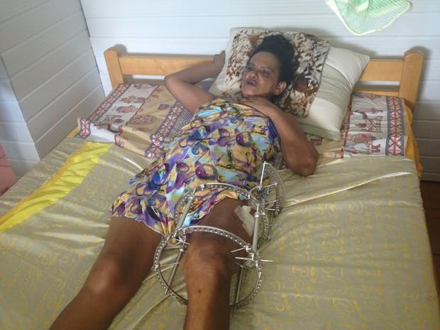 Acidente médica Cruzeiro do Sul Acre  (Foto: Genival Moura/G1)