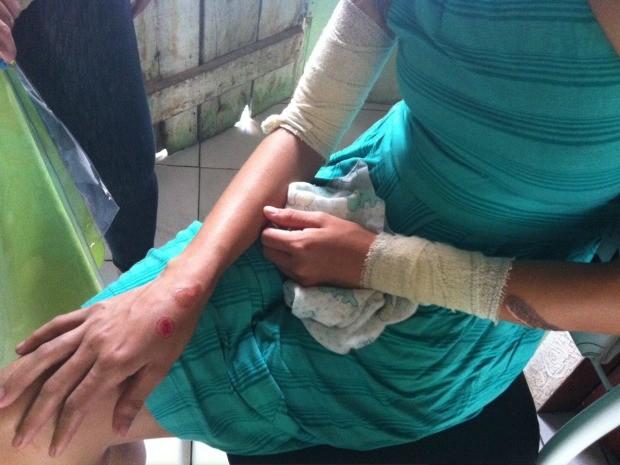 A mãe da criança teve lesões no ombro, braços e costas (Foto: Girlene Medeiros/G1 AM)
