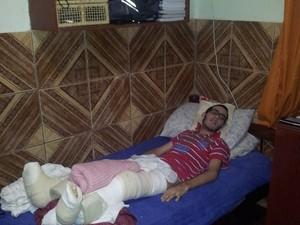 Hugo está com as pernas engessadas por conta da última cirurgia (Foto: Sérgio Tadeu da Silva/Arquivo Pessoal)