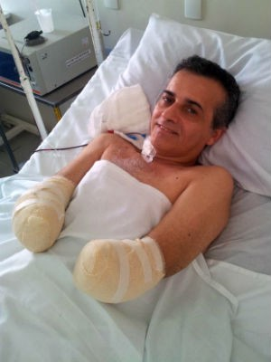 Após acidente, aposentado ficou 84 dias internado no hospital (Foto: Arquivo Pessoal/ José Guilhermino)