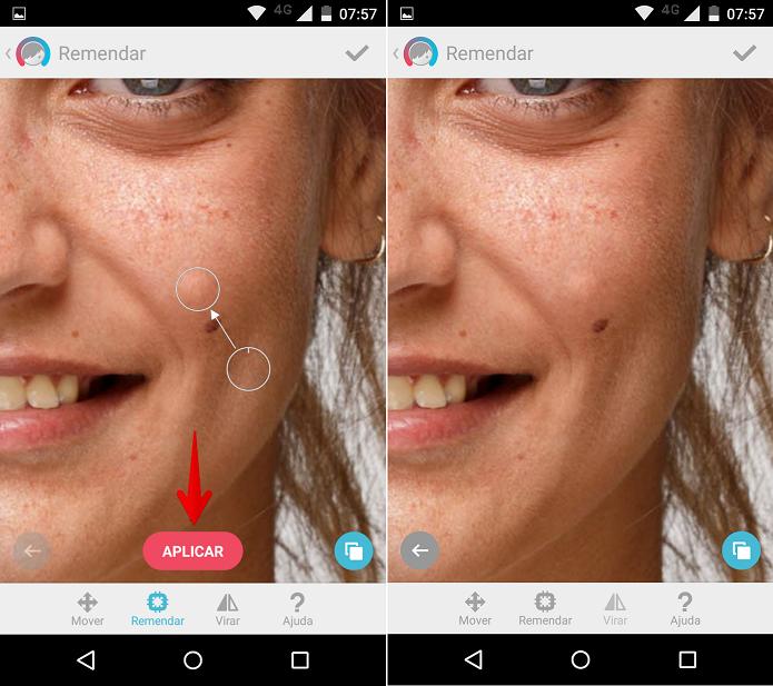 Removendo sinais ou espinhas do rosto (Foto: Felipe Alencar/TechTudo)