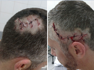 Rafael teve ferimentos que teriam sido feitos por tubarão em duas partes da cabeça (Foto: Rafael Hermes Thomas/Arquivo Pessoal)