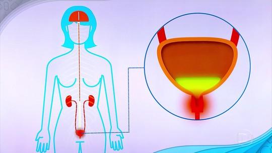 Infecção urinária: Bem Estar investiga sintomas, causas e tratamento