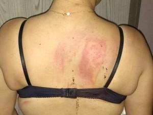 Mulher é espancada pelo ex-namorado e duas mulheres em Capivari (Foto: Arquivo Pessoal)