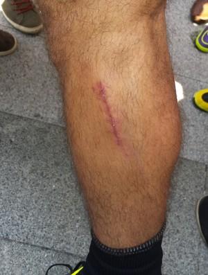 Dátolo mostra cicatriz do corte na perna (Foto: Léo Simonini)