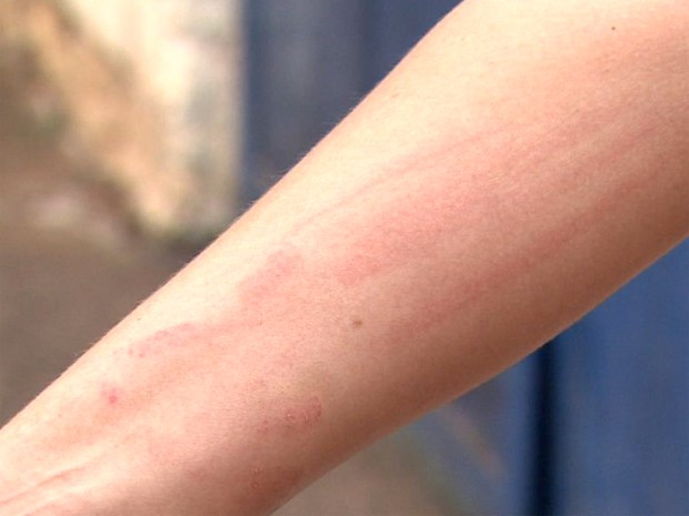 Secretária de escola ficou com marcas após ser agredida por aluno em Brodowski, SP (Foto: Valdinei Malaguti/ EPTV)