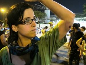 Cecília Souza, de 23 anos, foi atingida por uma bala de borracha no braço (Foto: Vicente Seda/G1)