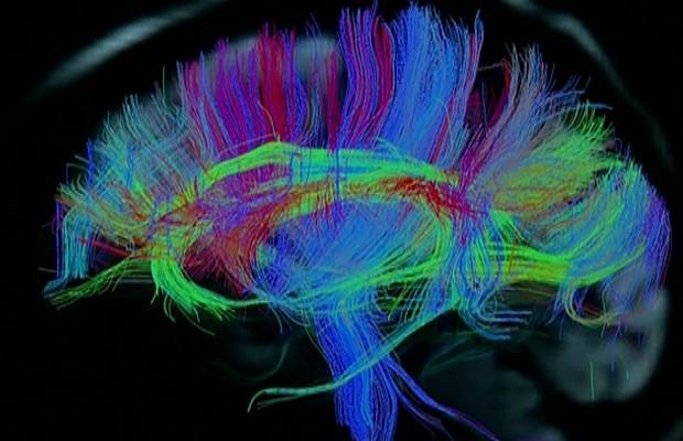 Imagem detalhada do cérebro obtida com scanner fabricado especialmente para exame (Foto: Reprodução/BBC)